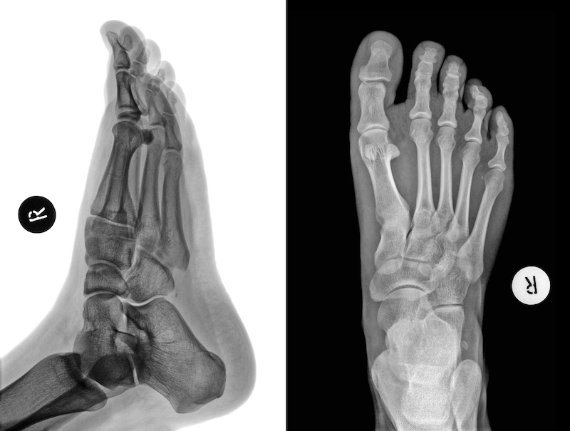 Ankle Fracture