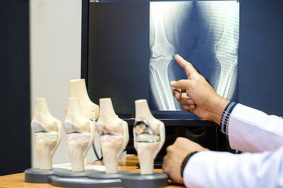 what-are-common-types-of-orthopedic-imaging-tests