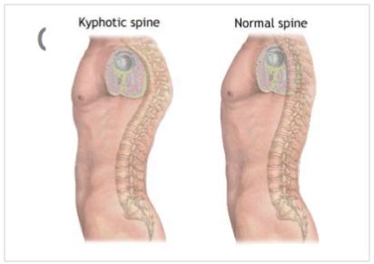 spinal-deformities-treating-kyphosis