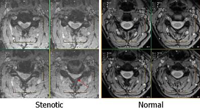 spinal-stenosis-vs-cervical-spondylotic-myelopathy