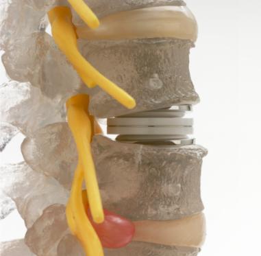 types-of-lumbar-surgery